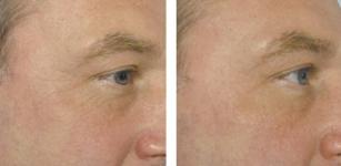 Ревитализация клиника врач косметолог иньекционные процедуры омоложение восстановление кожи Киев